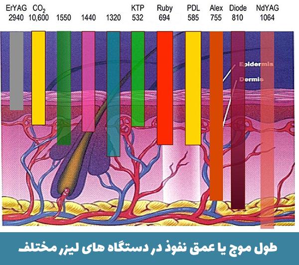 طول موج در دستگاه های لیزر مختلف