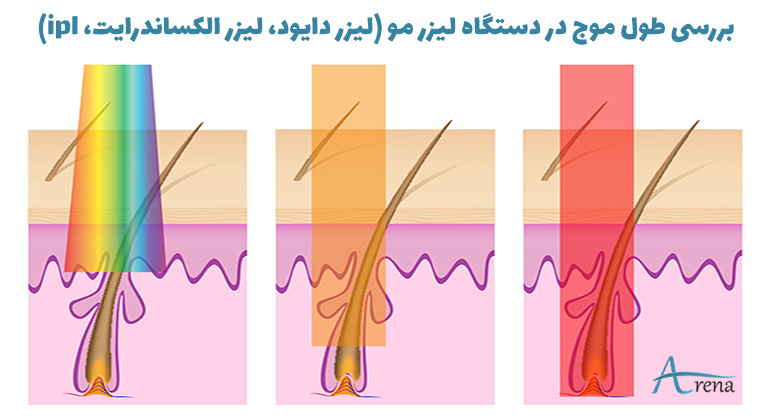 طول موج دستگاه لیزر مو